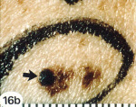 A Melanoma nodule (From National Cancer Insitute)