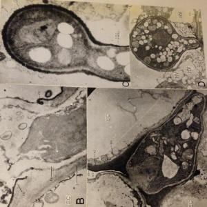 Fungi enter a host cell using penetration structures called Haustoria